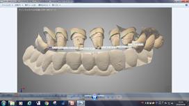 口腔内スキャナのデータのノウハウ